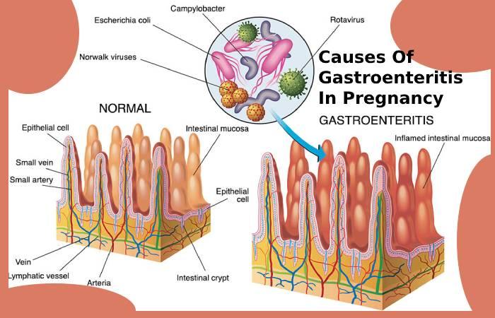 Causes Of Gastroenteritis In Pregnancy