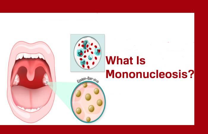 What Is Mononucleosis?